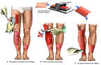Debridement and Skin Grafting of Bilateral Lower Extremities