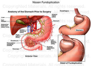 Nissen Fundoplication