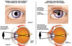 Corneal Damage with Associated Visual Distortion