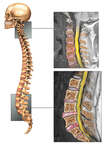 Cervical and Lumbar Injuries