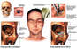 Traumatic Head and Face Injuries with Subsequent Surgery