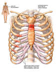 Post-accident Chest Injuries