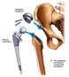 Femoral and Acetabular Components Placed