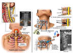 Neck and Chest Injuries with Surgical Discectomy and Fusion Procedure