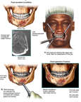 Surgical Fixation of Mandible