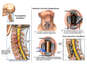 Multilevel Cervical Disc Injuries with Surgical Fusion