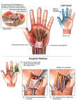 Carpal Tunnel Syndrome and Surgical Release: Left Hand
