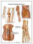 Injuries to the arm, elbow, penis and foot