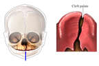 Cleft Palate
