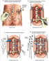 Lumbar Disc Herniation with Posterior Fusion