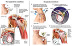 Left Shoulder Injuries with Initial Arthroscopic and Open Repairs