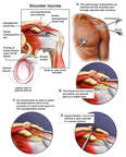 Left Shoulder Injuries and Surgical Repairs