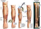 Surgical Fixation of the Left Tibia