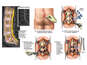 Spinal Stenosis and Instability and Subsequent Lumbar Fusion