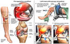 Left Knee Injuries and Arthroscopic Surgery