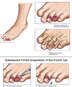 Crush Injuries of the Left Foot