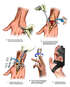 Surgical Fusion of Wrist and Finger Fixation