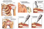 Shoulder Impingement Syndrome with Surgical Repair