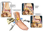 Arthroscopic Repair of the Right Ankle