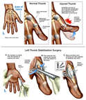 Left Thumb Instability with Stabilization Surgery