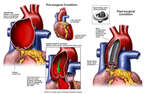 Aortic Defects with Surgical Repairs