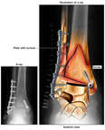 Surgical Fixation of Right Ankle Fractures