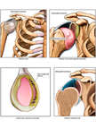 Right Shoulder Injuries Before Arthroscopic Surgery