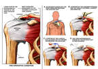 Right Shoulder Impingement and Rotator Cuff Tear with Surgical Repair