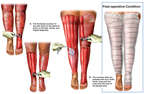 Skin Grafting to Leg Burns