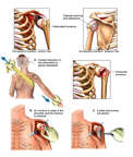 Anterior Dislocation of the Left Shoulder with Attempted Reduction with Intra-operative Fracture and Surgical Fixation