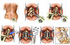 Lumbar Laminectomy, Discectomy and Fusion Surgery