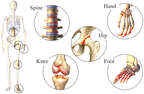 Osteoarthritic Joints