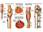 Right Leg Fracture and Compartment Syndrome with Surgical Fasciotomies and Fixation