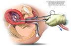 Suction and Curettage Abortion of a 9 Week Old Fetus