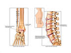 Proposed Future Conditions of Ankle and Lumbar Spine