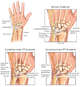 Progression of Left Hand and Wrist Injuries