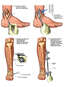 Surgical Fixation of the Right Distal Tibia and Fibula