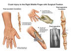 Crush Injury to the Right Middle Finger with Surgical Fixation