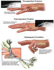 Progression of Left Hand Fractures