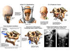 Cervical Spine Dislocation with Surgical Fusion