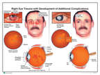 Right Eye Trauma with Development of Additional Complications