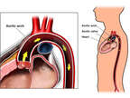 Normal Anatomy of the Aorta