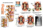 Lumbar Spine Fractures with Surgical Stabilization