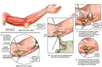 Left Cubital Tunnel Syndrome wth Surgical Transposition