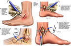 Surgical Fixation of Left Ankle Fractures