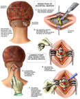 Chronic Migraine Headaches - Occipital Neuralgia with Surgical Procedures
