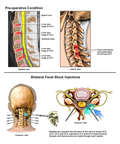 Multilevel Cervical Spine Injuries with Cervical Facet Block Injections