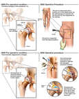 Arthritis of Hip and Surgical Repair