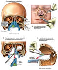 Bilateral Nasal Cancer with Surgical Removal
