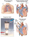 Cardiopulmonary Bypass with Oxygenator Detail
